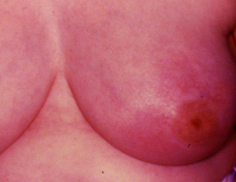 Inflammatory BC